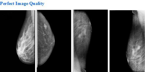 mamography images PER-BTX-9800B HF